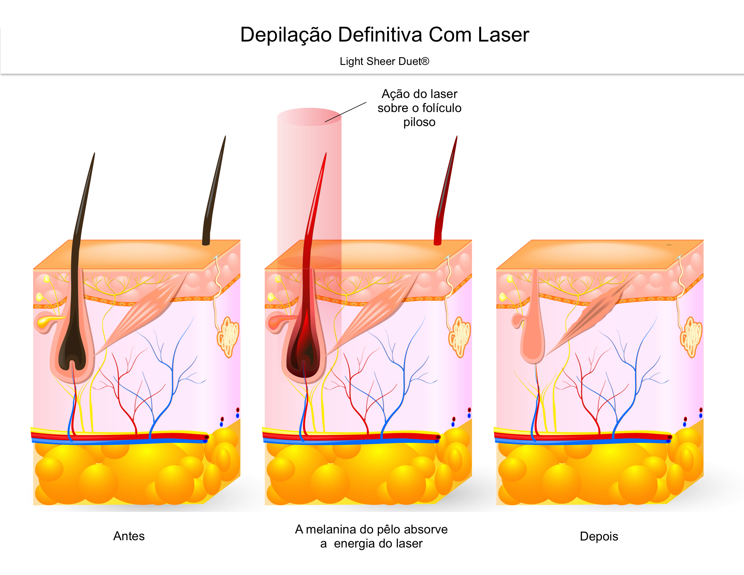 depilao-definitiva---ao-do-laser.jpg